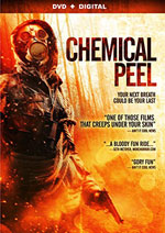 DVD Cover for Chemical Peel